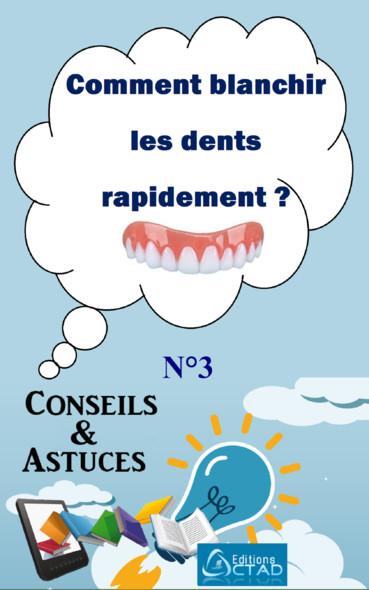 Comment blanchir les dents rapidement ? : Conseils et Astuces